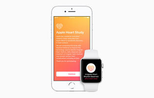 2 big wins for the Apple Watch and heart health today (US only though)