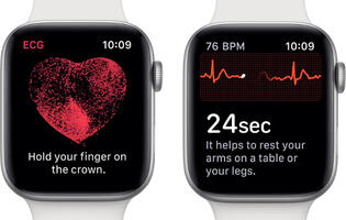 New ECG app on Apple Watch Series 4 alerted user to A-fib heart issue