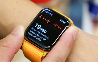 Doctor sues Apple over patented heartbeat-monitoring technology